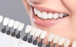 teeth whitening knoxville tn